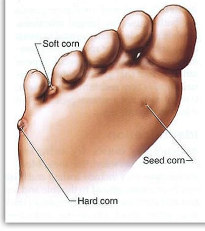 Corns on Feet Treatment