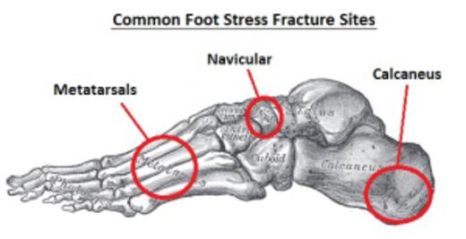 Top of Foot Pain Diagram