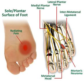 Foot Neuroma Treatment