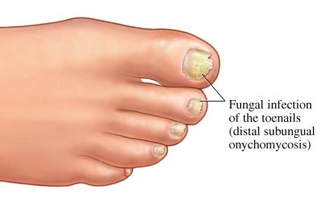 Toenail Fungus | Custom Foot Clinic & Orthotic Centre
