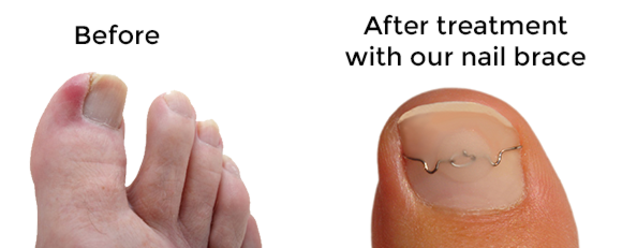 Ingrown Toenail Brace