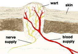 Plantar Wart Diagram