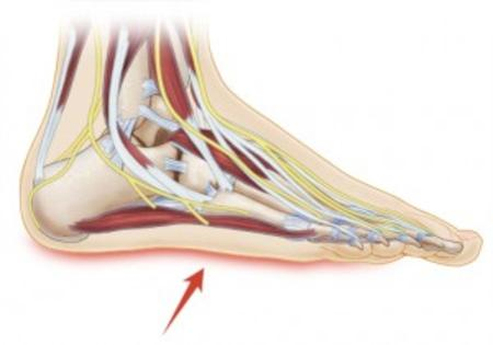 Treatment for Arch Pain