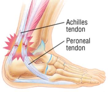 Treatment for Ankle Pain